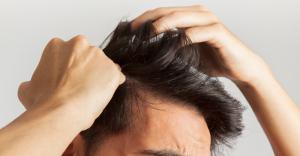 Implantul de păr