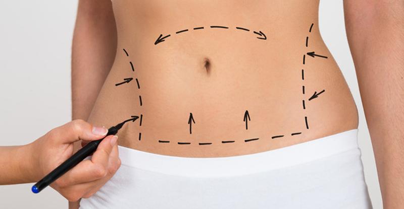 cum de a îndepărta grăsimea laterală a buricului sâcâi sânii după pierderea în greutate
