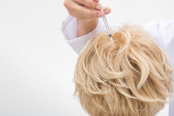 Mezohair (tratamentul împotriva alopeciei)